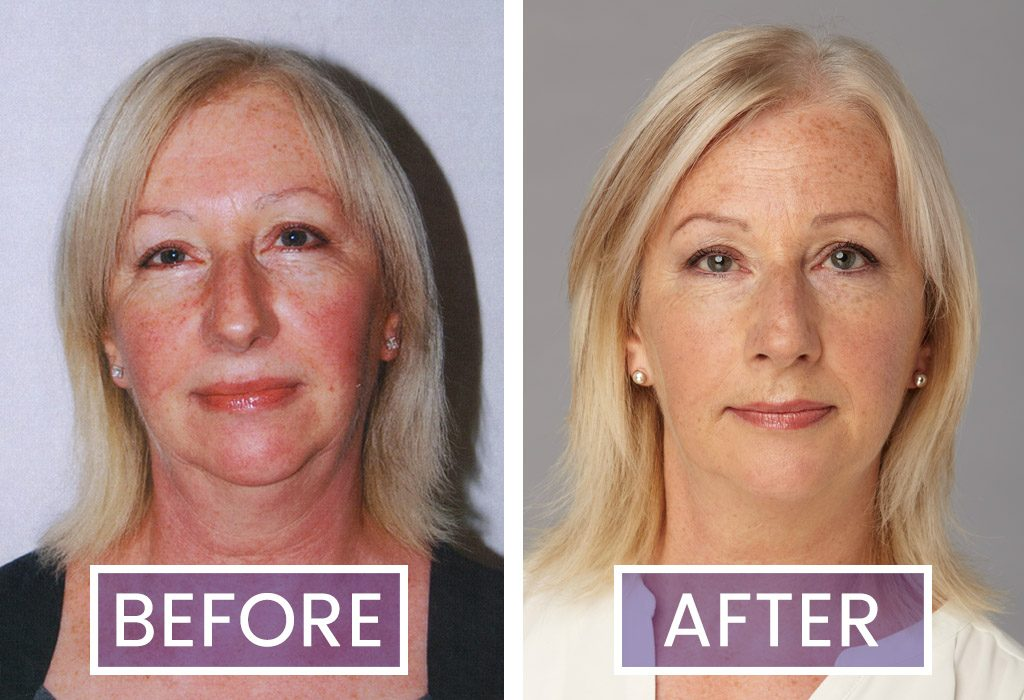 Lynne Pounder - Before & After